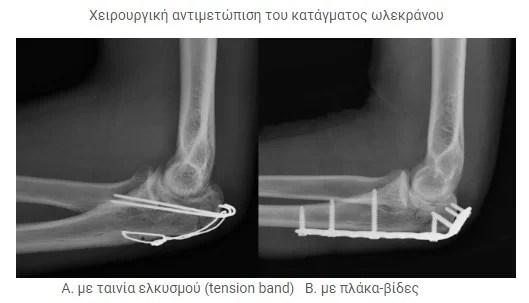 Οστεοσύνθεση καταγμάτων αγκώνα