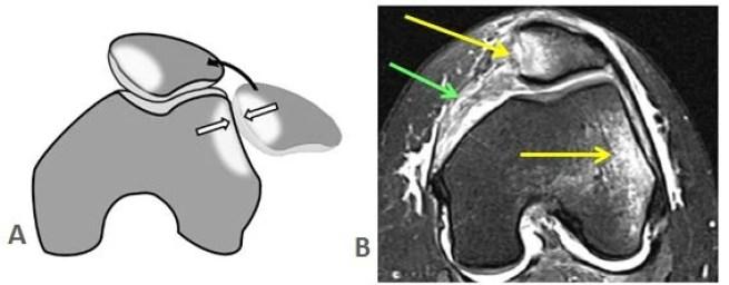 Εξάρθρημα επιγονατίδας: εικόνα μαγνητικής τομογραφίας