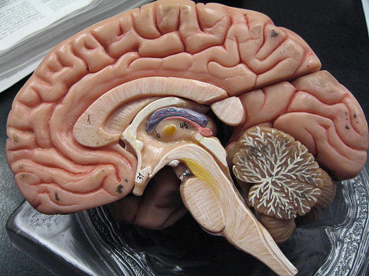 Resultado de imagem para cérebro com alzheimer