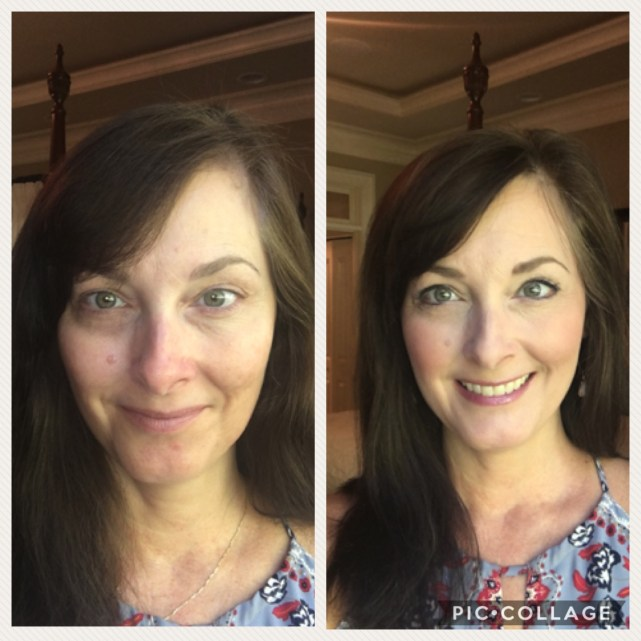 Limelight by Alcone professional quality makeup is the only thing that conceals my dark circles and discoloration. Miracle worker!