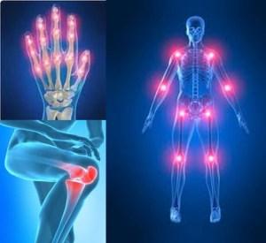 La importancia del colágeno para los huesos, tendones y cartílagos
