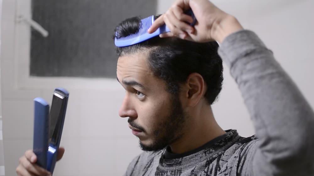 Heat - Hair Loss