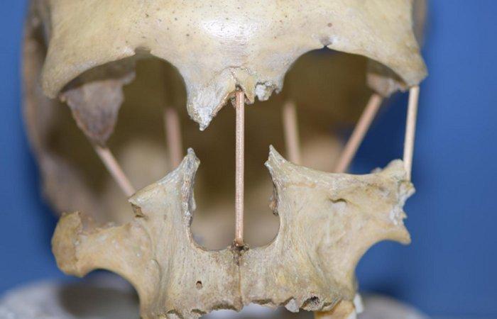 DNA de crânio romeno de 35.000 anos revela falhas na teoria da evolução