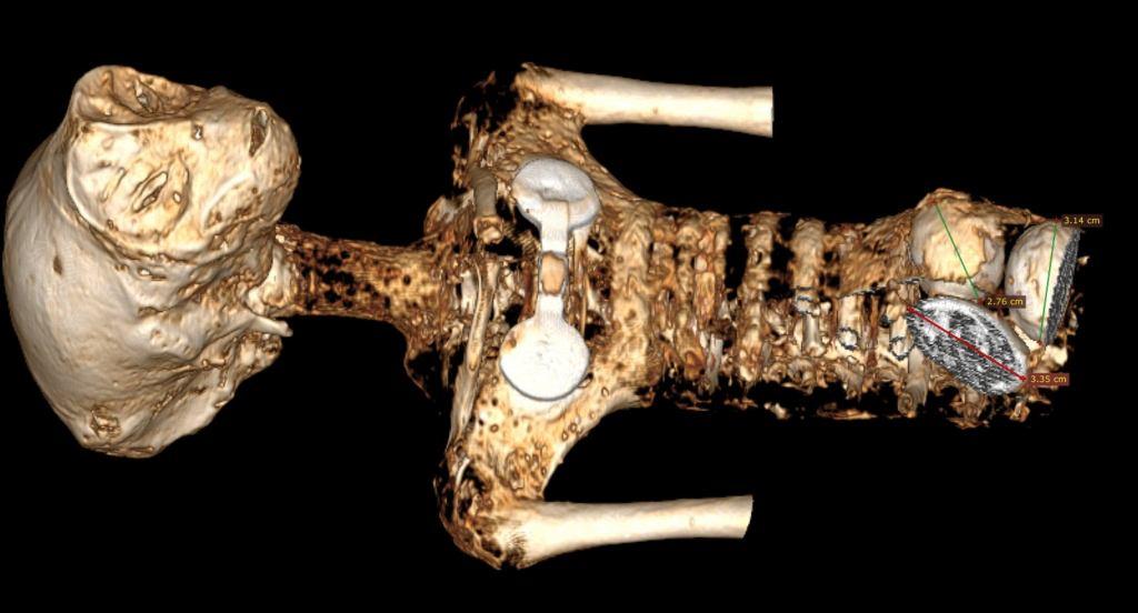 A múmias de 3 dedos de Nazca estão de volta e podem ser reais
