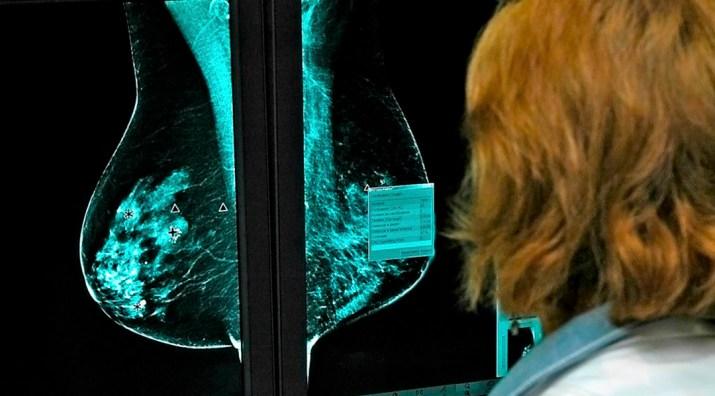 Mamografia luz infrarroja