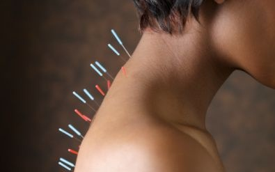 Multiple Sclerosis and Acupuncture