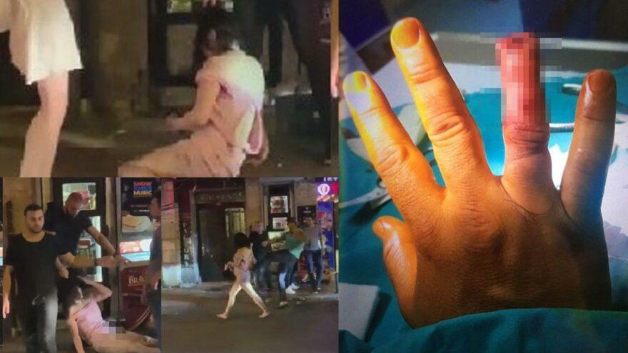 Özel güvenlik görevlisinin parmağını ısırarak kopardı
