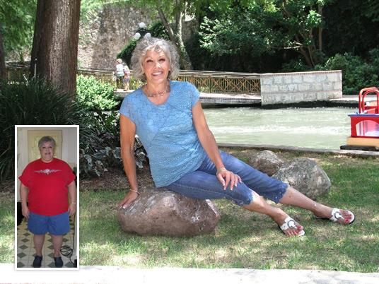 Lap Band San Antonio Success Story Martha
