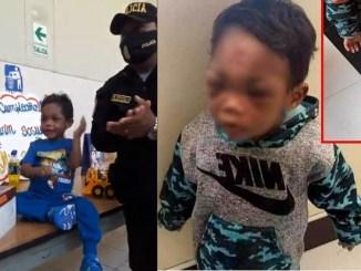 Policías y enfermeras celebran cumpleaños a niño golpeado por su padrastro #VIDEO