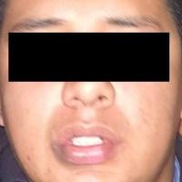 Sujeto que golpeó a mujer en Coapa es elemento de la Guardia Nacional