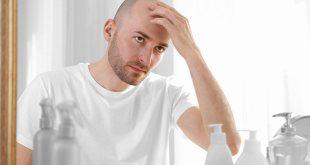 Cosa fare per la caduta dei capelli? Consigli da seguire