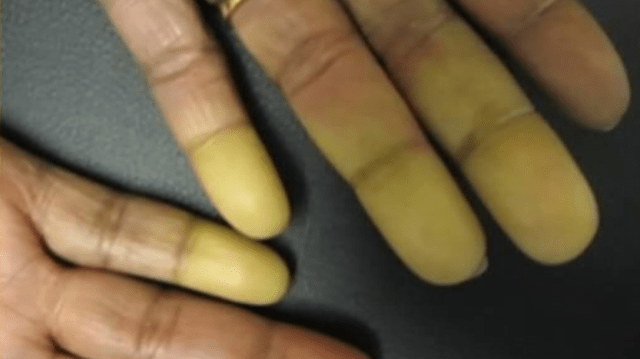Raynaud's_1541544299515.PNG