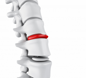slipped disc treatment doctor