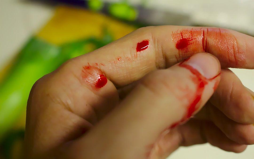 Ante una hemorragia, ¿cómo debemos actuar?