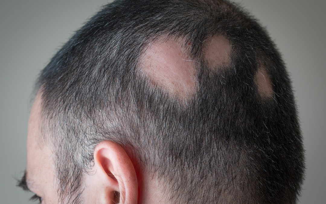 Caída de pelo o alopecia: tipos