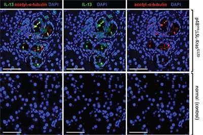 IL-13 in pancreatic tumors in mice