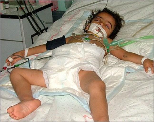 pasien anak di gaza