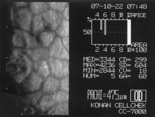 Cheratoplastica perforante PKP