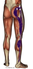 Hip And Leg Pain From Spasm In The Gluteus Minimus