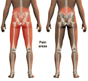 Back Pain Westminster CO