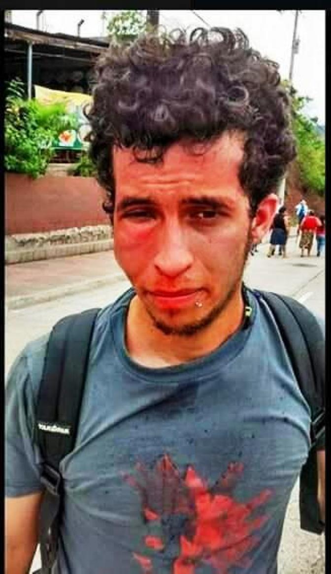 Los golpes le dejaron hematomas en el rostro a Sergio Ulloa