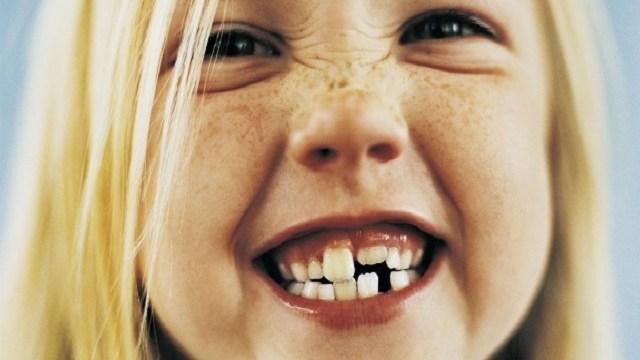 foto_denti_storti