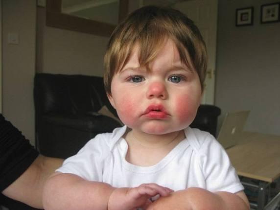bambino con eritema quinta malattia