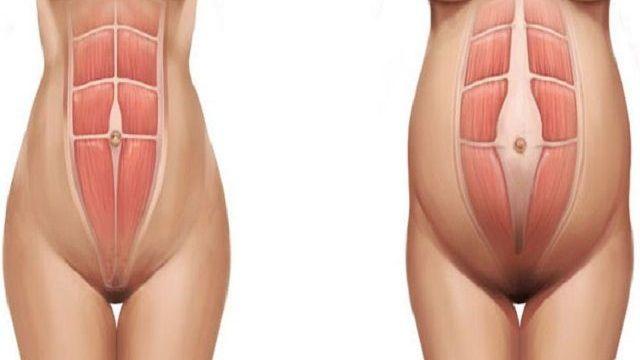 diastasi addominale post parto