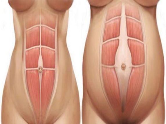 diastasi addominale gravidanza