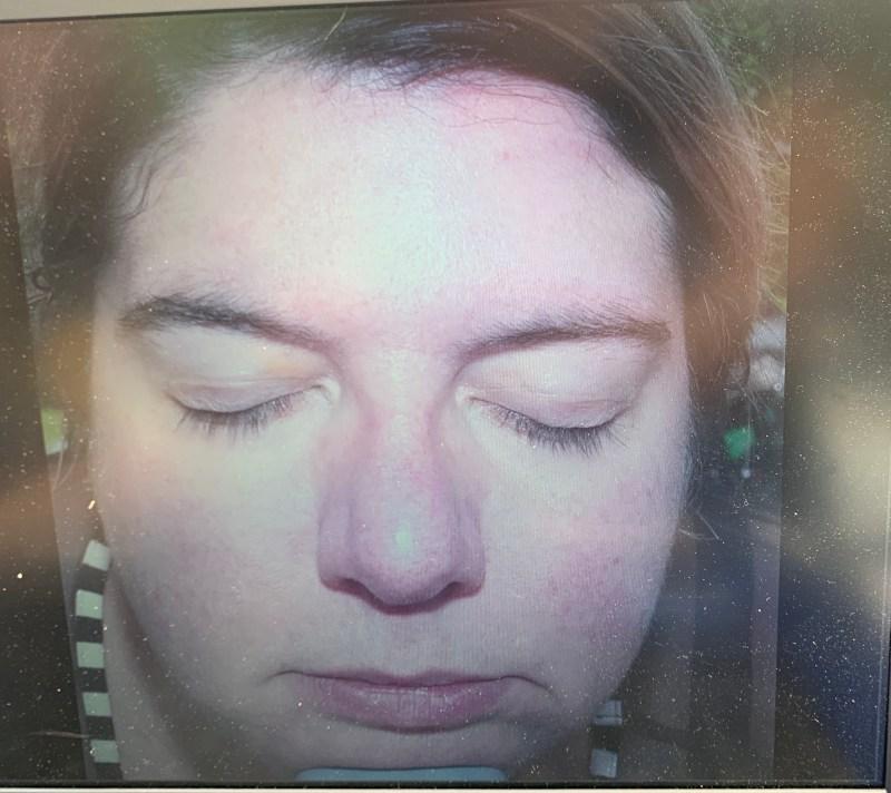 crème solaire - photo de la peau