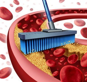 Cleaning arteries concept as a broom removing plaque buildup in a clogged artery as a symbol of atherosclerosis disease medical treatment opening clogged veins with blood cells as a metaphor for removing cholesterol as an icon of vascular diseases.
