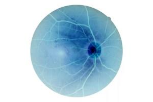 Human eye anatomy, retina, optic disc artery and vein etc.