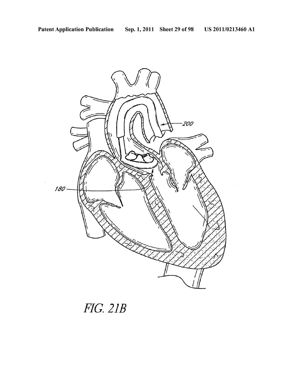 Schematic Diagram Of Heart Structure Diagram
