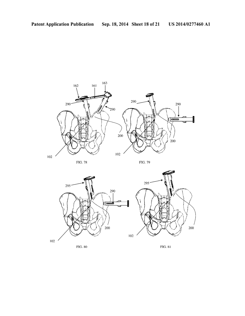 2001 mercury mountaineer engine diagram furthermore t6764595 2004 ford in addition 3bjh2 fuse location power distribution
