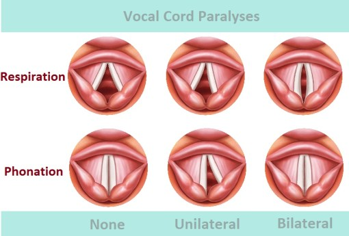 chart of normal and paralyzed vocal cords