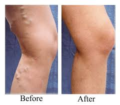 Varicose veins laser treatment cost in bangalore dating. idiomatic expressions out to lunch dating.