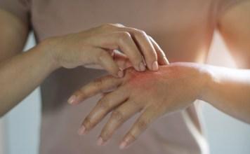 10 módszer pszoriázis, pikkelysömör kezelésére