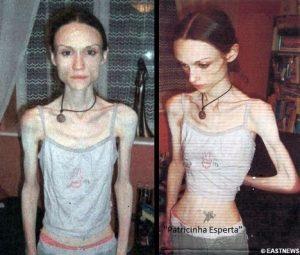 anorexia1 300x255 - Anorexia Nervosa