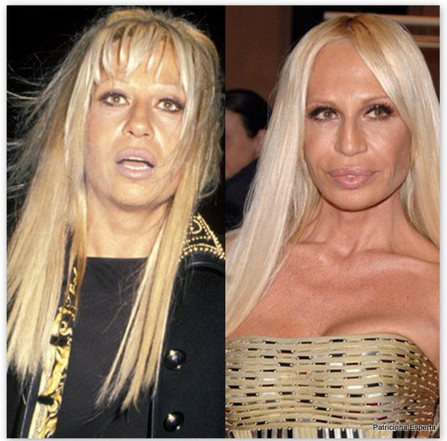 Patricinha Esperta271 - Elas Exageraram no Botox
