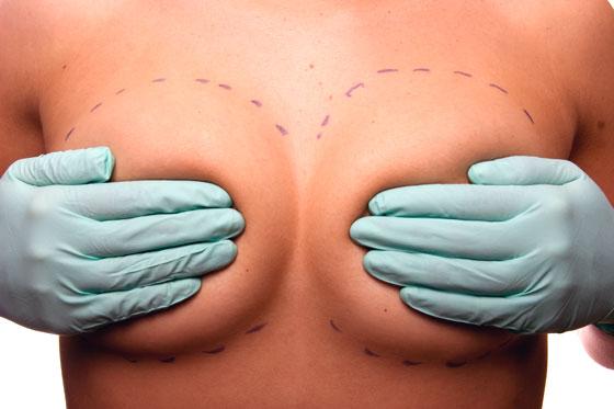 mamoplastia silicone - Redução de Mama - Eu Fiz!
