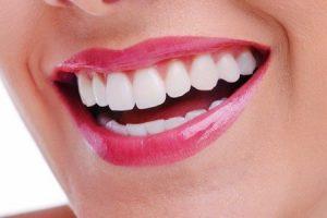 dentes 300x200 - Lentes de contato para os dentes?