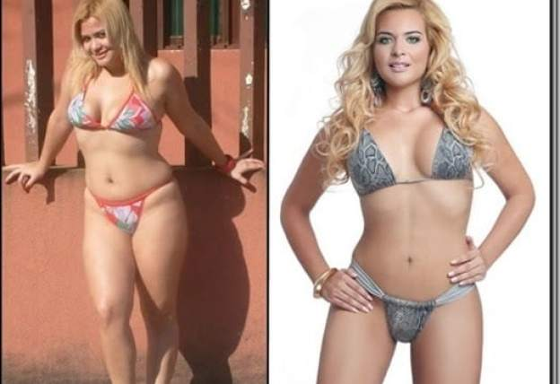 Lipoescultura antes e depois - Lipoescultura Pra Remodelar o Corpo!
