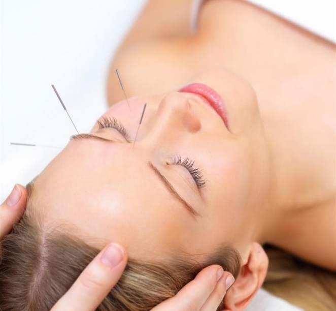 acupuntura - Acupuntura elimina rugas e tira manchas do rosto