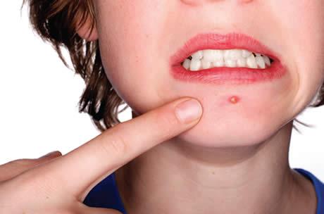 acne - Acne Adulta: O Tormento!