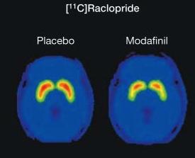 raclopride PET following modafinil