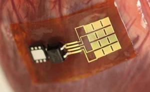 Sensor implantado no coração ou no pulmão