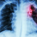 Opdivo approved in US for treating small cell lung cancer