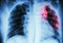 BMS application for lung cancer treatment gains US approval