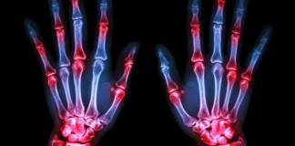 UK lags behind for rheumatoid arthritis patient access to biologics