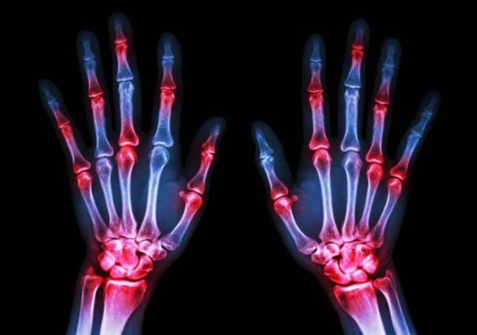 UK lags behind for rheumatoid arthritis patient access to biologics